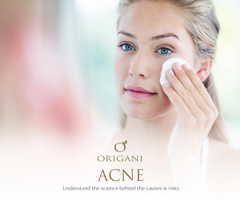 Acne: Understand The Science Behind The Causes And Risks