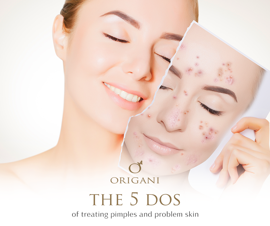 The 5 Do's Of Treating Acne